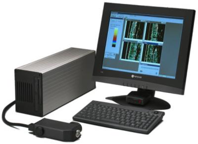 超音波掃描儀-1
